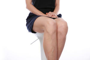 womans legs with varicose veins