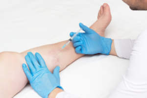 doctor performing treatment on varicose veins