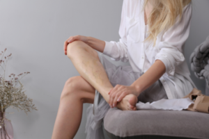 woman with varicose veins on calves