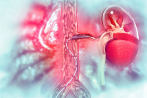Peripheral artery disease stent angioplasty