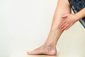 varicose veins on leg and foot